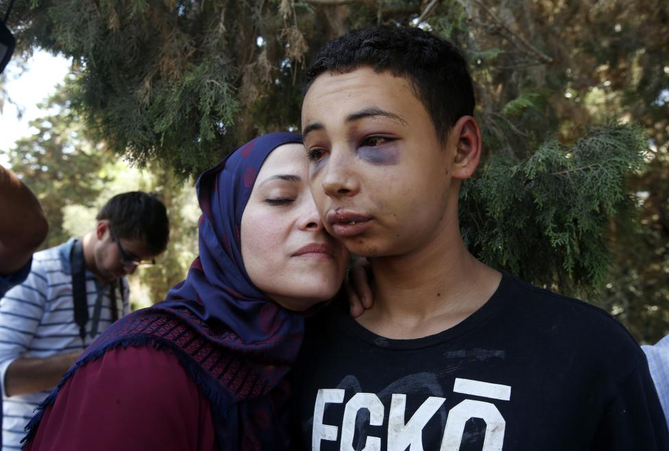 Tariq Khdeir is greeted by his mother after being released from jail in Jerusalem