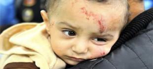 Birleşmiş Milletler Gazze'de çocukların dramına dikkat çekti!