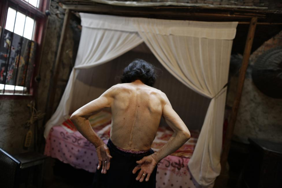 Qin Zhengyu shows moles and tumours on her back in her home at Heshan village, in Shimen county, central China's Hunan Province