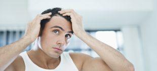 Saç PRP Tedavisi Nedir